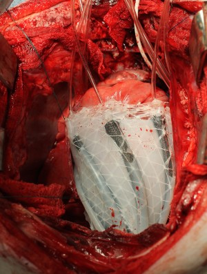 Robot Sleeve cardiac