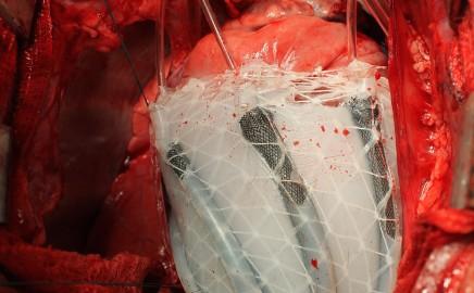 Robot Sleeve cardiac