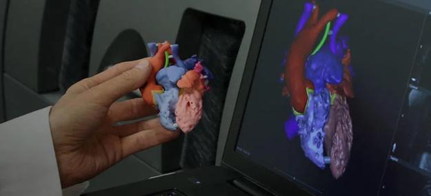 20-Nov-3D-Systems-VHA-Medical-625